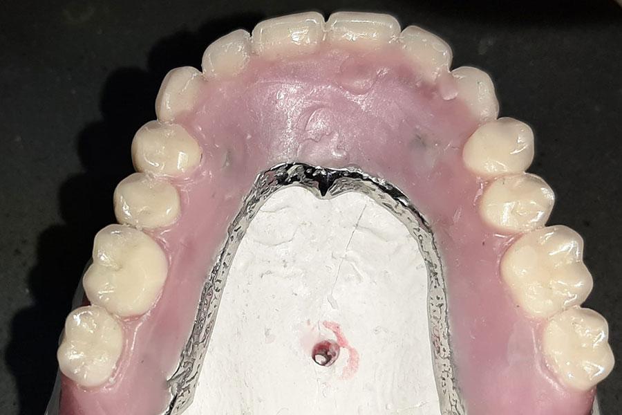 Ansicht Zähne auf Wachs