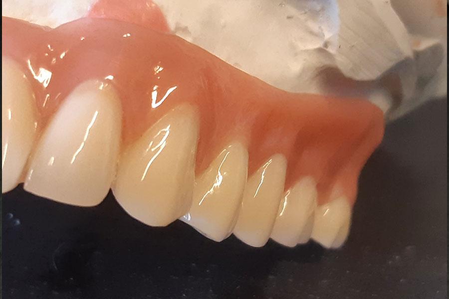 Verschraubbares Implantat